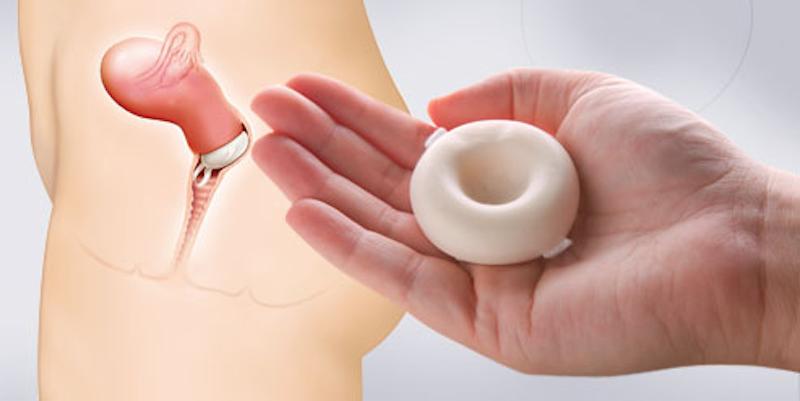 La-esponja-vaginal-al-igual-que-el-diafragma-y-el-capuchon-cervical-se-coloca-al-final-del-cuello-uterino